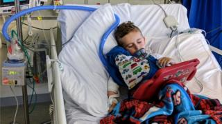 Oscar has been in hospital 57 times with his asthma